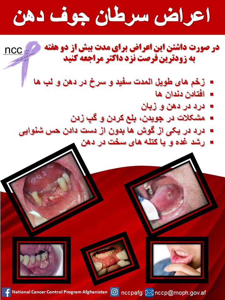 اعراض سرطان جوف دهن